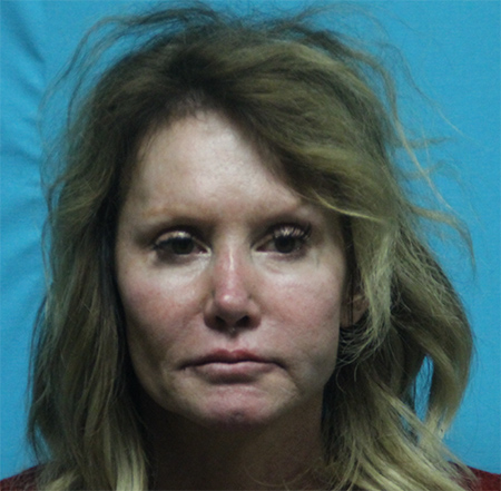 Assault Causing Bodily Injury in Colleyville